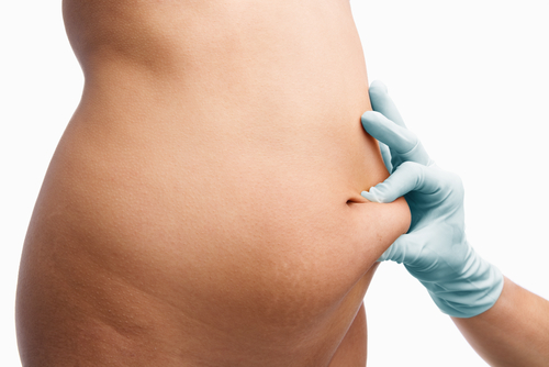 Liposuction Cost Vaser Lipo Ultrasonic Fat Removal Finance